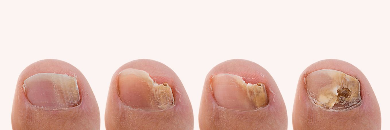 What Causes Toenail Fungus and How to Treat it | Boots Ireland